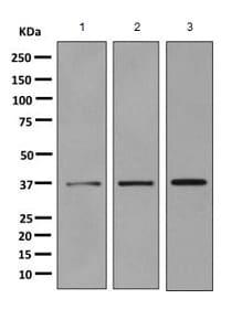Western blot - Anti-GALE antibody [EPR11089(B)] (ab155277)