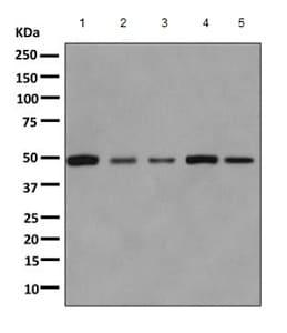 Western blot - Anti-Aspartyl Aminopeptidase antibody [EPR10300] (ab155286)