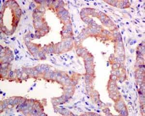Immunohistochemistry (Formalin/PFA-fixed paraffin-embedded sections) - Anti-UAP1 antibody [EPR10259] (ab155287)