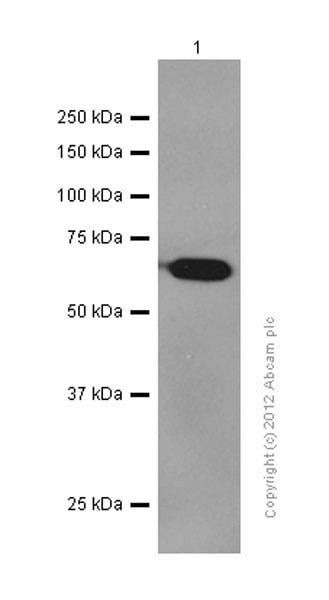 Western blot - Anti-VEGFD antibody [EPR8457] (ab155288)