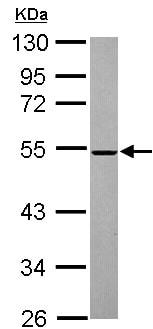 Western blot - Anti-ROX antibody (ab155335)