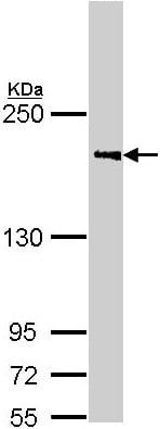 Western blot - Anti-C4b antibody - C-terminal (ab155336)
