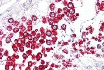 Immunohistochemistry (Formalin/PFA-fixed paraffin-embedded sections) - Anti-SOX17 antibody (ab155402)