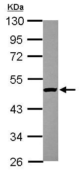 Western blot - Anti-KAT1 / HAT1 antibody (ab155414)