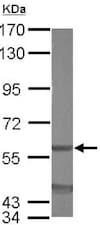 Western blot - Anti-EIF3D antibody (ab155419)