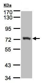 Western blot - Anti-AGPS antibody (ab155492)