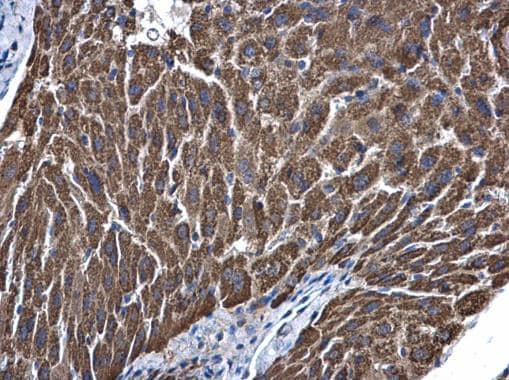 Immunohistochemistry (Formalin/PFA-fixed paraffin-embedded sections) - Anti-ALDH5A1/SSADH antibody (ab155493)