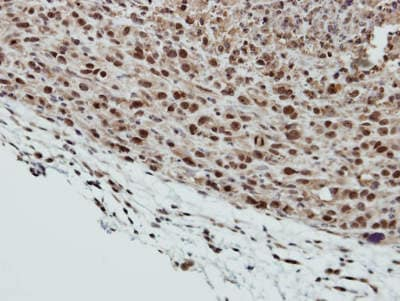 Immunohistochemistry (Formalin/PFA-fixed paraffin-embedded sections) - Anti-SMC6 antibody (ab155495)