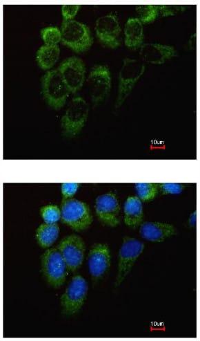 Immunocytochemistry/ Immunofluorescence - Anti-Tyrosyl tRNA synthetase/TyrRS antibody (ab155504)