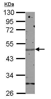 Western blot - Anti-Zinc finger protein 672 antibody (ab155525)