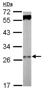 Western blot - Anti-Ski8 antibody (ab155540)