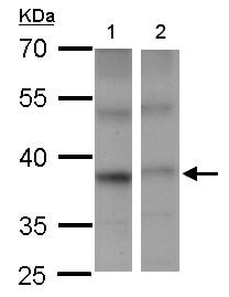 Western blot - Anti-PSTPIP2 antibody (ab155543)