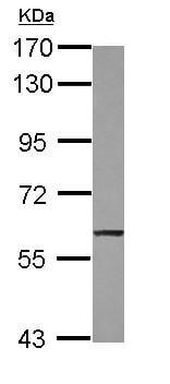 Western blot - Anti-TRIM47 antibody (ab155549)