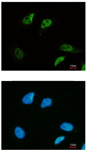 Immunocytochemistry/ Immunofluorescence - Anti-SMC3 antibody - C-terminal (ab155587)
