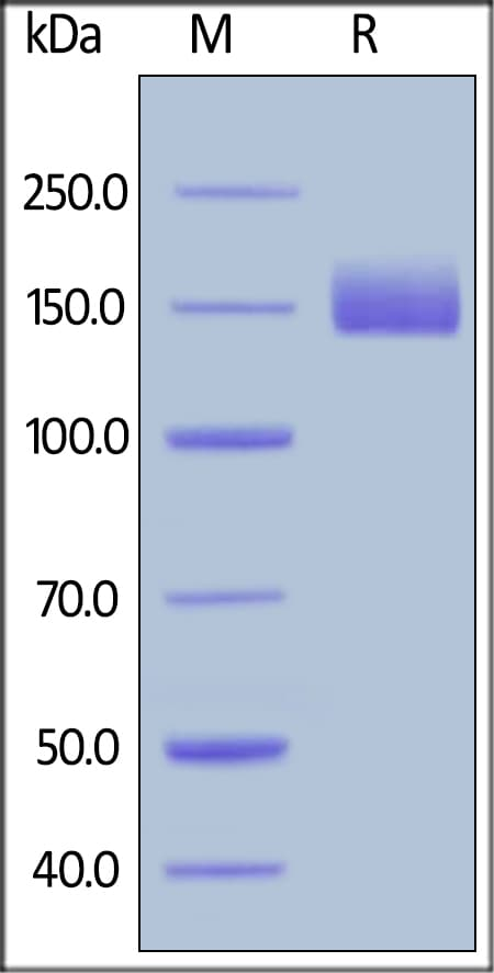 SDS-PAGE - Recombinant human LIFR protein (ab155609)