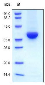 SDS-PAGE - Recombinant human IGF1 protein (ab155614)
