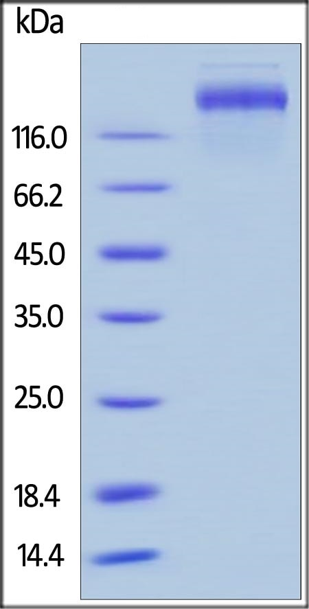 SDS-PAGE - Recombinant human Leptin Receptor protein (ab155615)