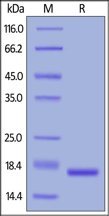 SDS-PAGE - Recombinant human IL-1 beta protein (ab155616)