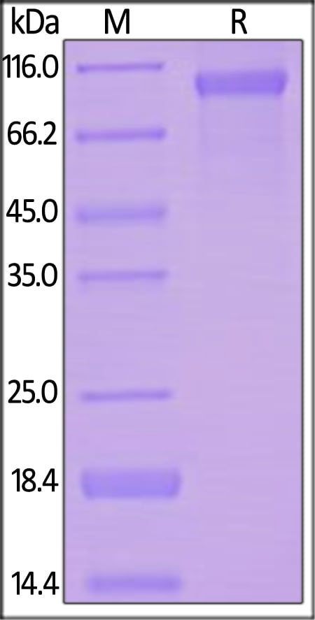 SDS-PAGE - Recombinant human VLDL Receptor/VLDL-R protein (ab155621)