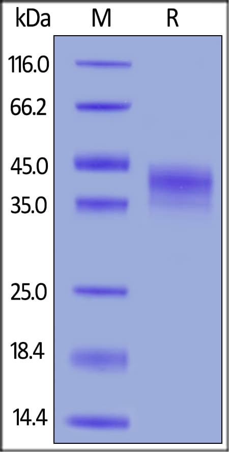 SDS-PAGE - Recombinant human DKK1 protein (ab155623)