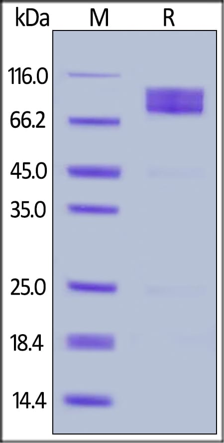 SDS-PAGE - Recombinant Human CD146 protein (ab155626)