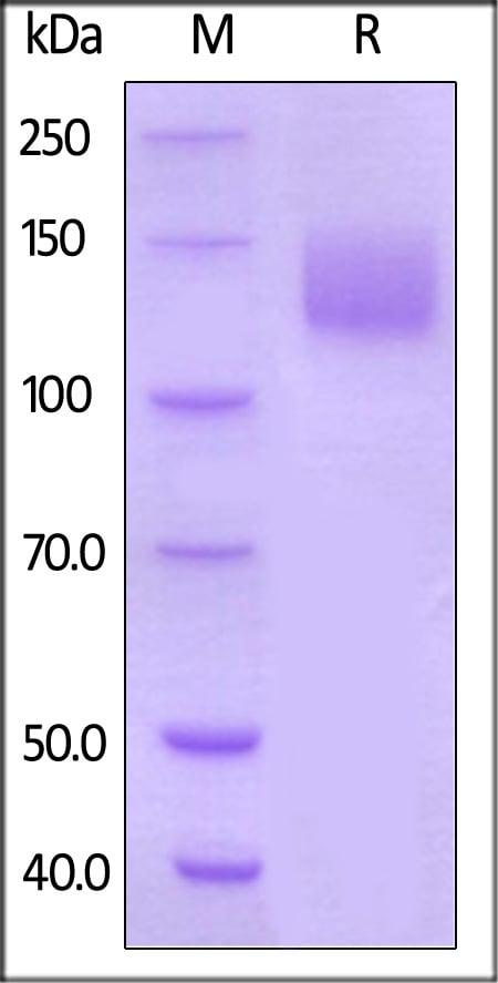 SDS-PAGE - Recombinant human VEGF Receptor 2 protein (ab155628)