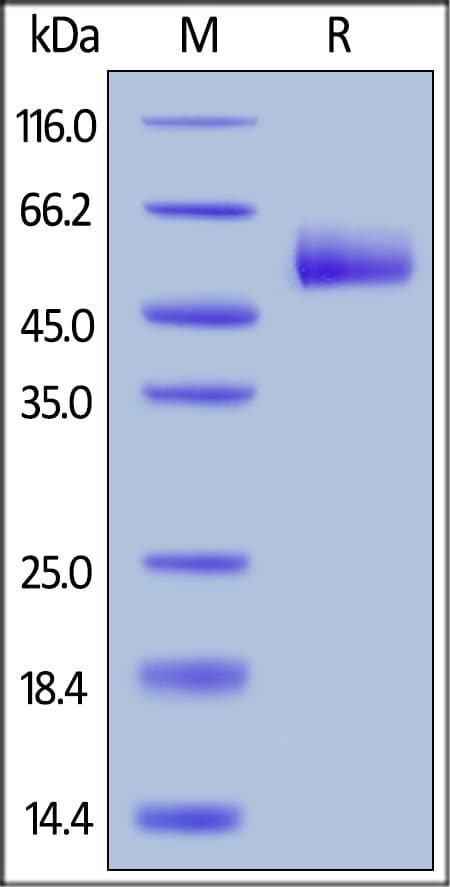 SDS-PAGE - Recombinant human TNFRSF14/HVEM protein (ab155629)