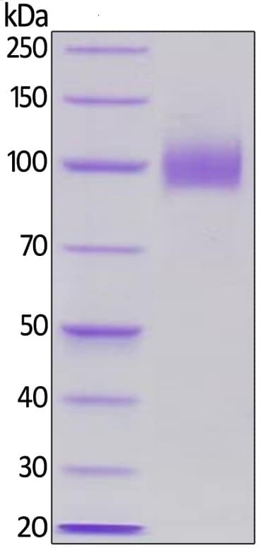 SDS-PAGE - Recombinant human EGFR protein (ab155639)