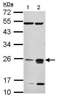 Western blot - Anti-CHMP4C antibody (ab155668)