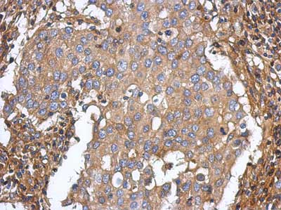 Immunohistochemistry (Formalin/PFA-fixed paraffin-embedded sections) - Anti-ST3GAL5 antibody (ab155671)