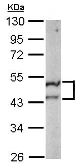 Western blot - Anti-ST3GAL5 antibody (ab155671)