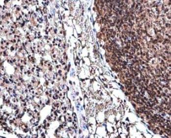 Immunohistochemistry (Formalin/PFA-fixed paraffin-embedded sections) - Anti-Cyclin D3/CCND3 antibody (ab155682)