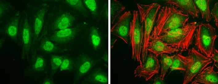 Immunocytochemistry/ Immunofluorescence - Anti-Cyclin D3/CCND3 antibody (ab155682)