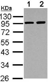 Western blot - Anti-ACTN3 antibody (ab155683)