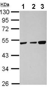 Western blot - Anti-TXNDC5 antibody (ab155684)