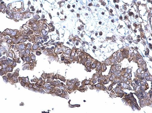 Immunohistochemistry (Formalin/PFA-fixed paraffin-embedded sections) - Anti-SQSTM1 / p62 antibody (ab155686)