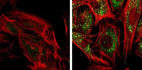 Immunocytochemistry/ Immunofluorescence - Anti-SQSTM1 / p62 antibody (ab155686)