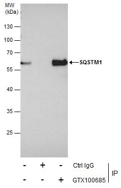 Immunoprecipitation - Anti-SQSTM1 / p62 antibody (ab155686)