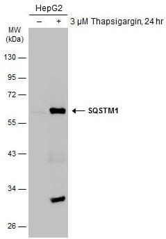 Western blot - Anti-SQSTM1 / p62 antibody (ab155686)