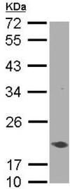 Western blot - Anti-AIMP3/p18 antibody (ab155689)
