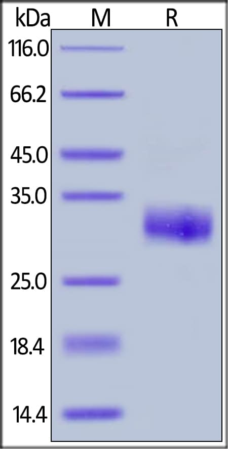SDS-PAGE - Recombinant human TIMP1 protein (ab155705)