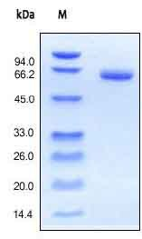 SDS-PAGE - Recombinant human EpCAM protein (ab155712)