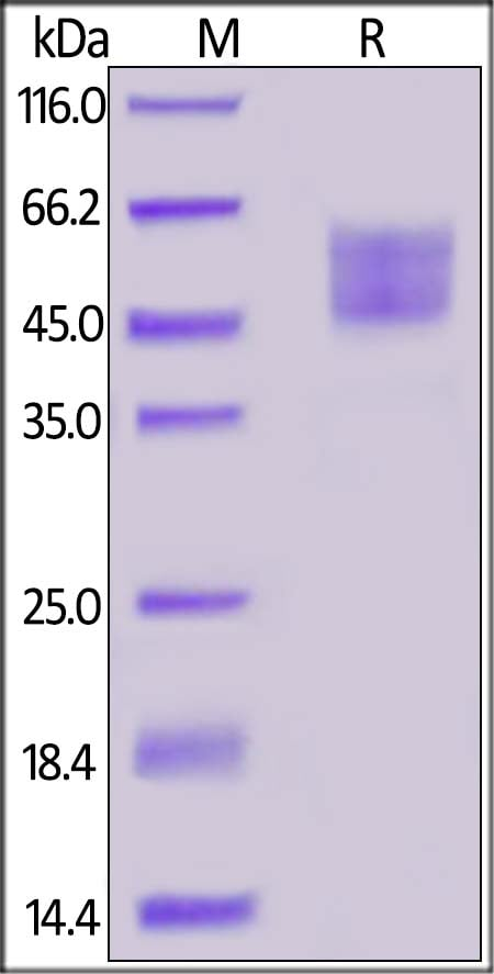SDS-PAGE - Recombinant Human Dkk3 (mutated R335G) protein (ab155717)
