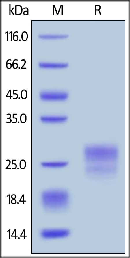 SDS-PAGE - Recombinant human IL-7 protein (ab155728)