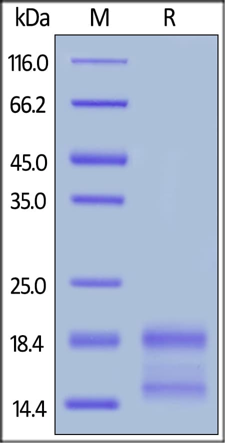 SDS-PAGE - Recombinant human IL-4 protein (ab155733)