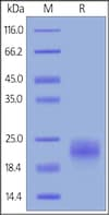 SDS-PAGE - Recombinant human VEGFC protein (ab155739)
