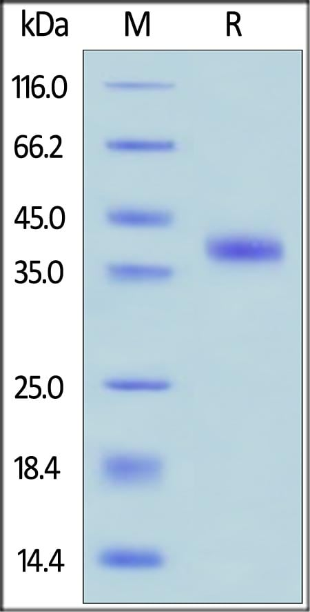 SDS-PAGE - Recombinant human RSPO1 protein (ab155744)