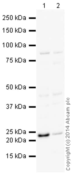 Western blot - Anti-TIMP3 antibody (ab155749)