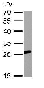 Western blot - Anti-RGS2 antibody (ab155762)