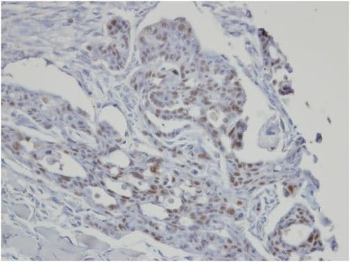 Immunohistochemistry (Formalin/PFA-fixed paraffin-embedded sections) - Anti-SART3 antibody - C-terminal (ab155765)